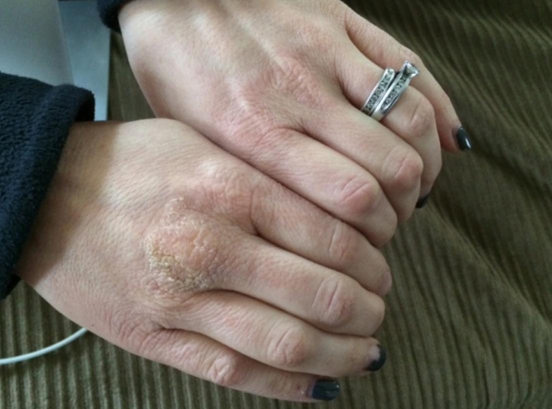Beauty Love Mederma Pm Intensive Overnight Scar Cream Mom