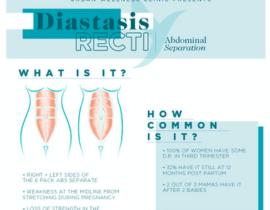 How to Heal Diastasis Recti Without Surgery