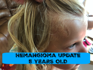 Hemangioma 5 Year Old Update
